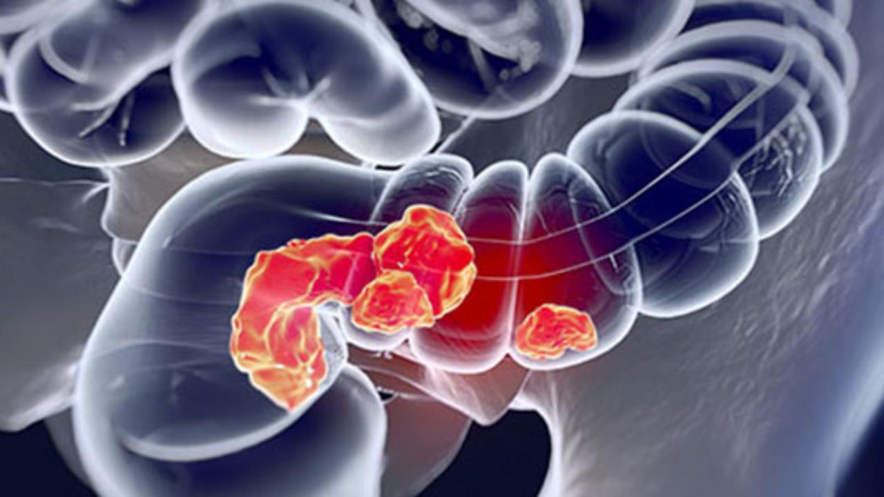 hpv cancer de colon îndepărtarea papiloamelor din vagin